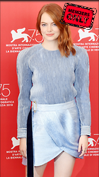 Celebrity Photo: Emma Stone 2651x4734   2.1 mb Viewed 2 times @BestEyeCandy.com Added 10 days ago