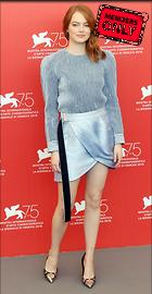 Celebrity Photo: Emma Stone 2541x4892   1.8 mb Viewed 1 time @BestEyeCandy.com Added 10 days ago
