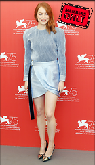 Celebrity Photo: Emma Stone 2609x4494   1.8 mb Viewed 1 time @BestEyeCandy.com Added 10 days ago