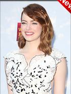 Celebrity Photo: Emma Stone 2260x3000   531 kb Viewed 16 times @BestEyeCandy.com Added 20 hours ago